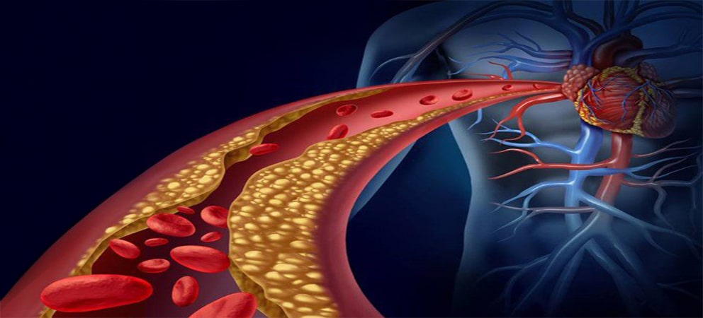 sistema inmune grasas trans colesterol